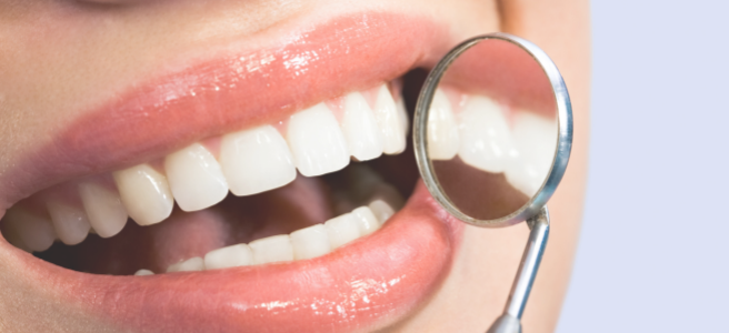 What are white spots on teeth